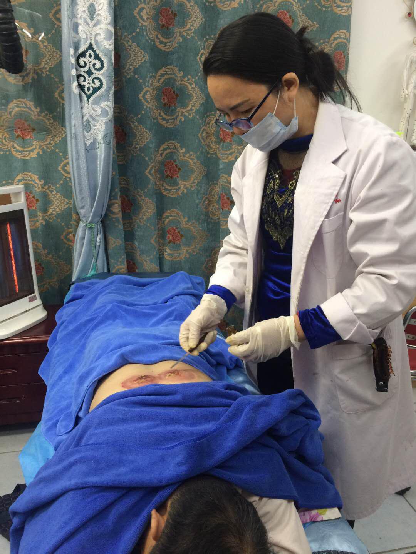 中医治疗,中医治疗三叉神经痛,中医治疗胸腰椎结核