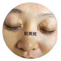 重庆市祛斑代理厂家