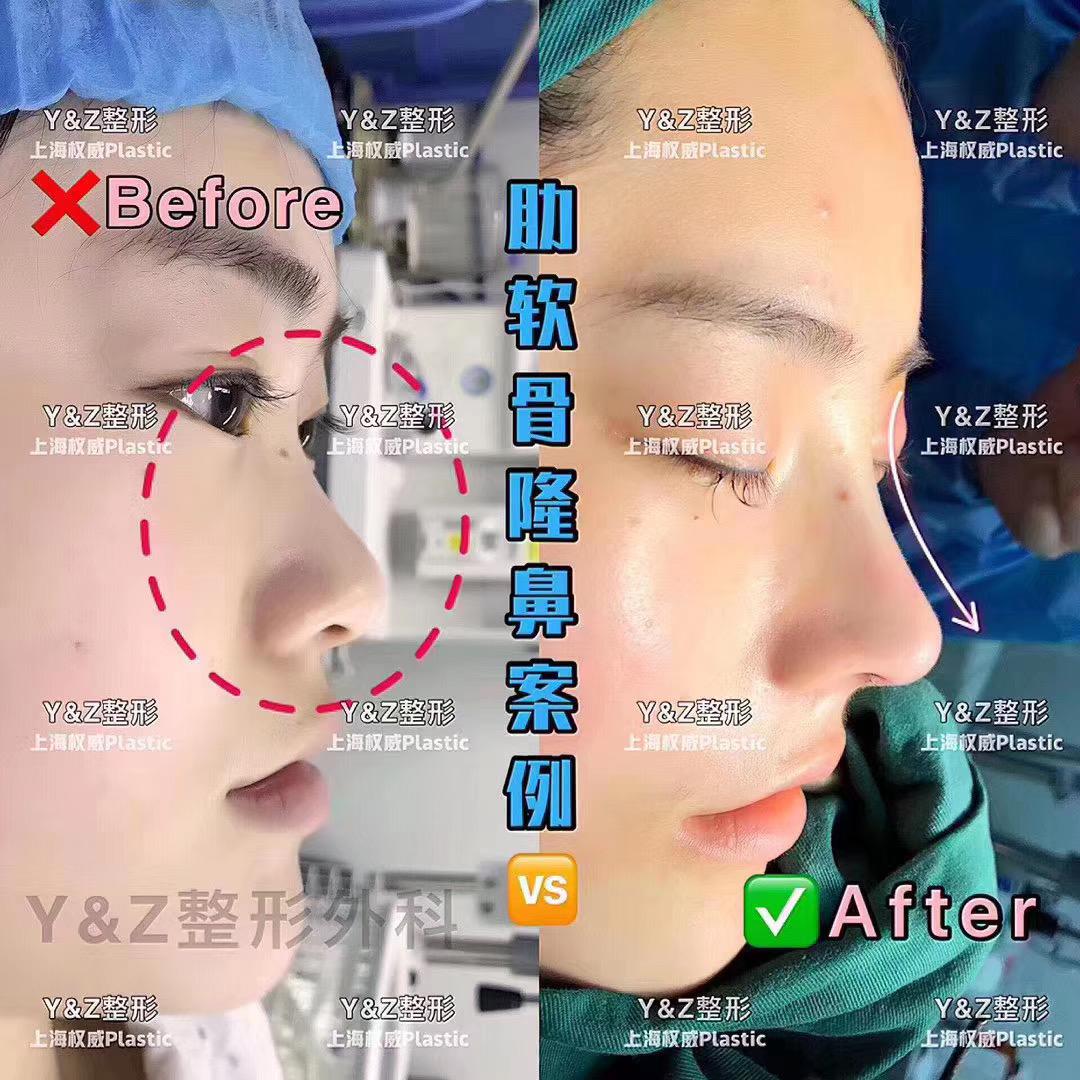 Y&Z国际医疗整形,沪上私人定制高级脸。