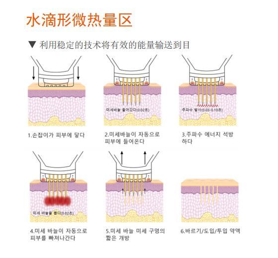 V纳斯黄金射频微针定制 规模大的黄金射频微针价格