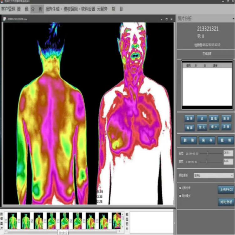 医用红外线 好口碑的便携式红外热成像仪公司